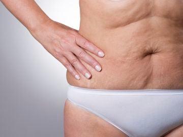 Flacidez en la zona del abdomen