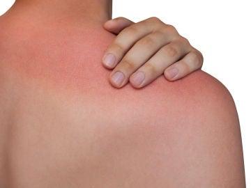 Quemadura solar en la espalda