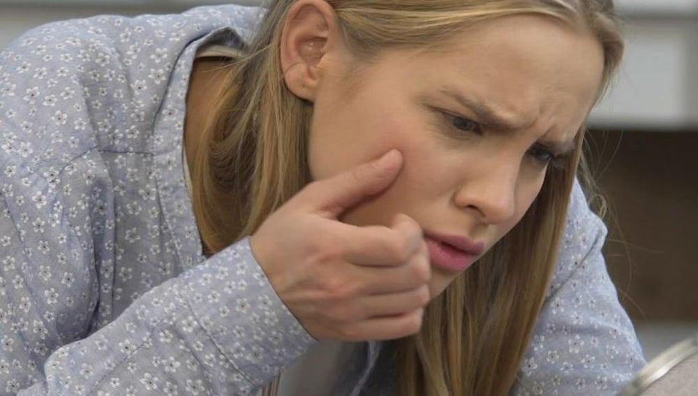Trucos caseros para acabar con el acné en la adolescencia
