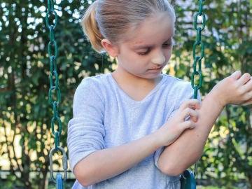 Niño con dermatitis