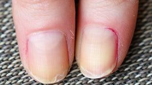 Uñas dañadas y con líneas verticales