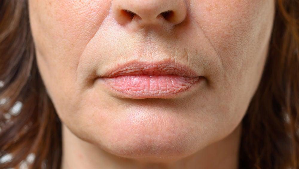 Líneas de expresión en la cara