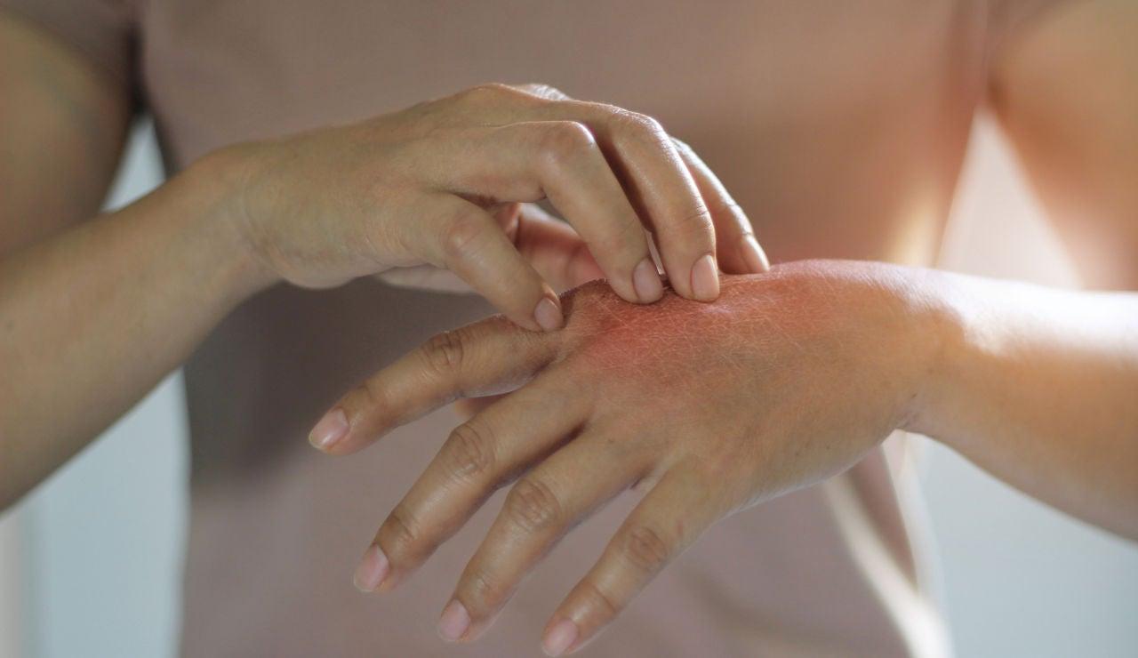 Picor en la mano