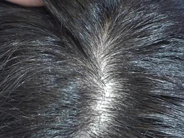 Diferencia entre caspa y cuero cabelludo seco