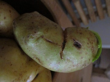 Sí, la patata te puede hacer pupita mala, aunque no te lo creas.