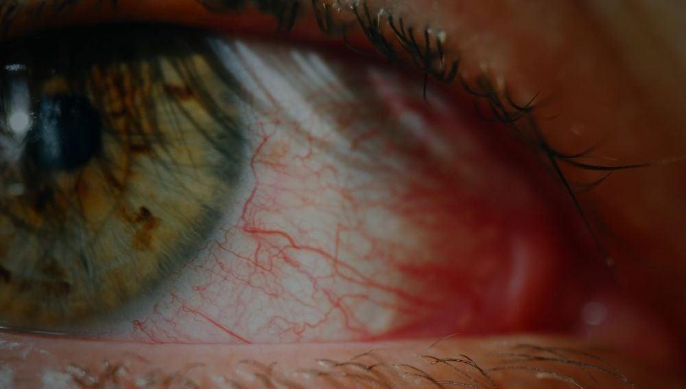 Alivia el enrojecimiento de ojos con estos sencillos trucos