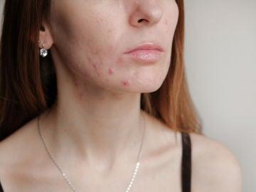 Granitos en la cara