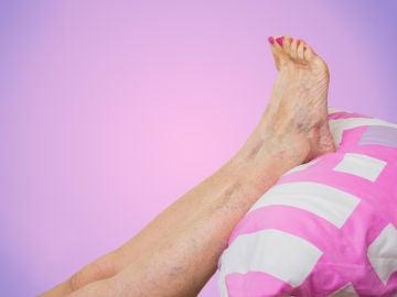 Alivio para piernas hinchadas
