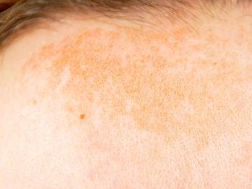 Manchas solares en la cara