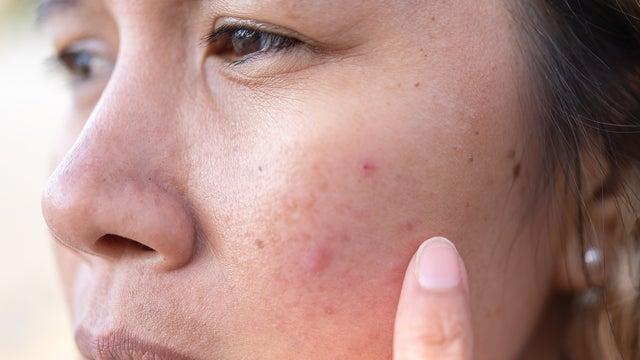 Manchas en la cara