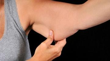 ¿Tienen solución los brazos colganderos?